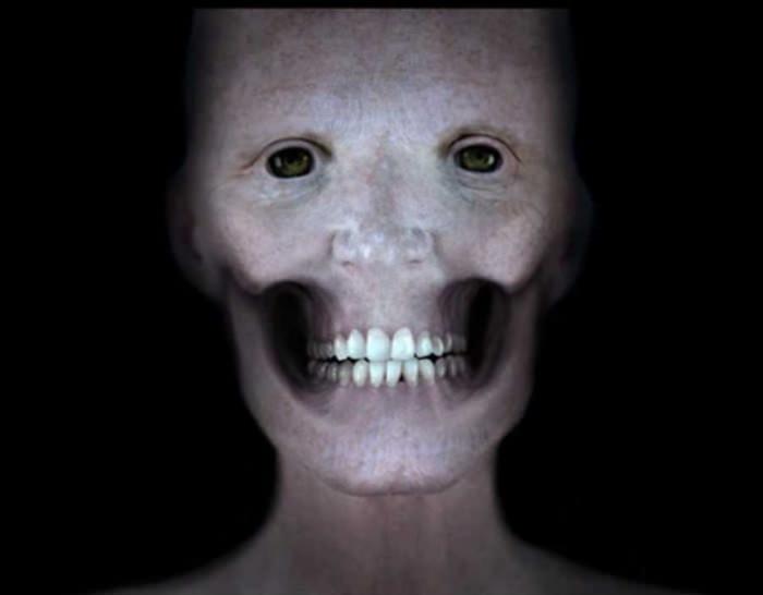 Elu5-inimese nägu ilma lihasteta